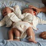 世界で初めて結合双生児の手術に3Dプリンターが使われる!その結果は……。
