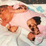50万人に1人の難病で全身が色素性母斑に覆われた少女、いじめを克服し、前向きに生きる!